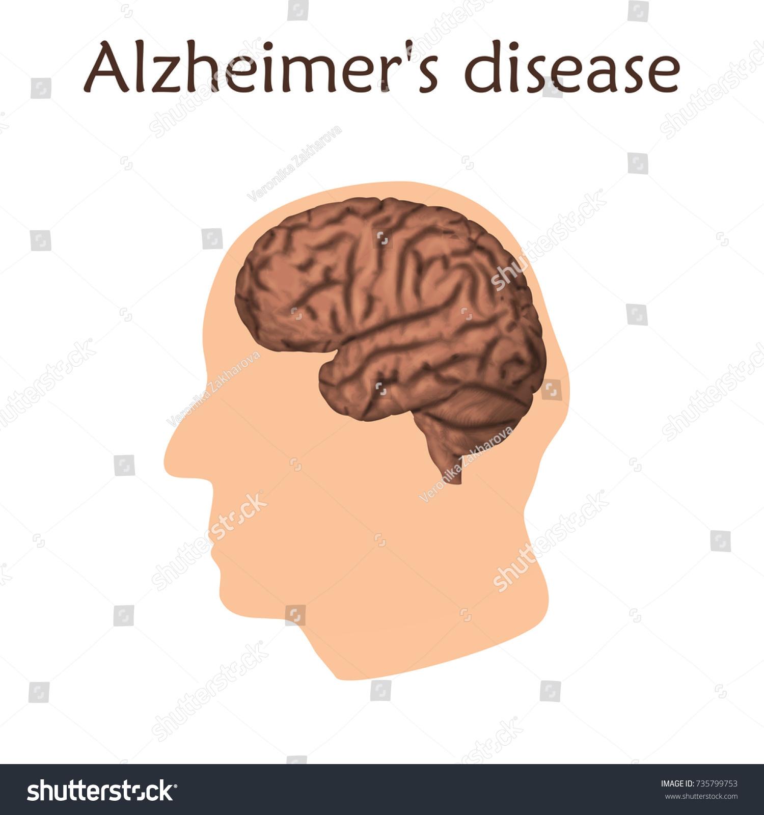 Alzheimers Disease Poster Banner Vector Medical Stock Vector ...
