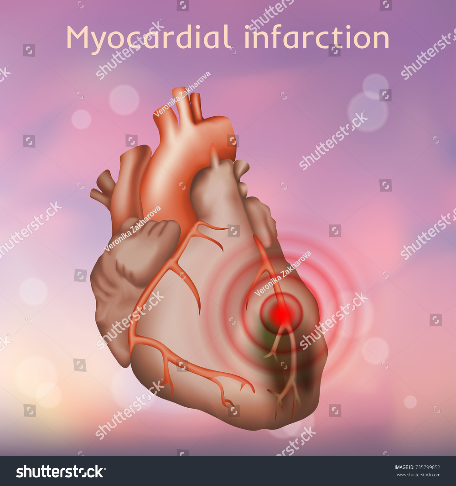 Myocardial Infarction Heart Attack Pain Damaged Stock Vector ...