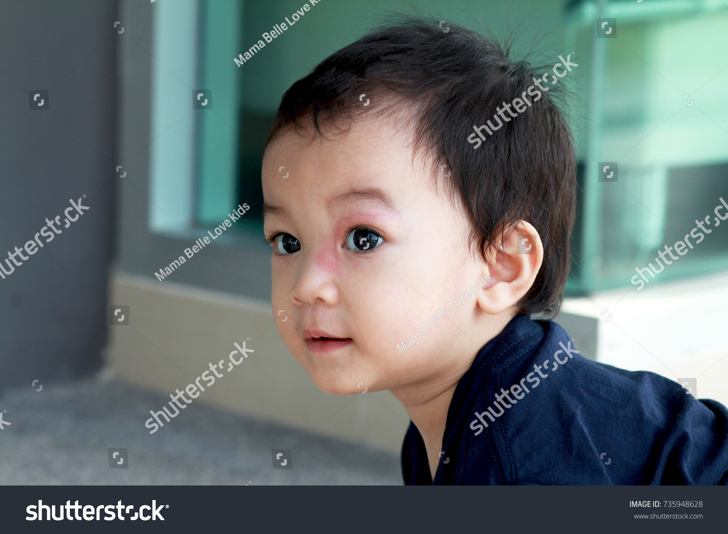Toddler Asian Boy Has Rash Red Stock Photo (Edit Now) 735948628