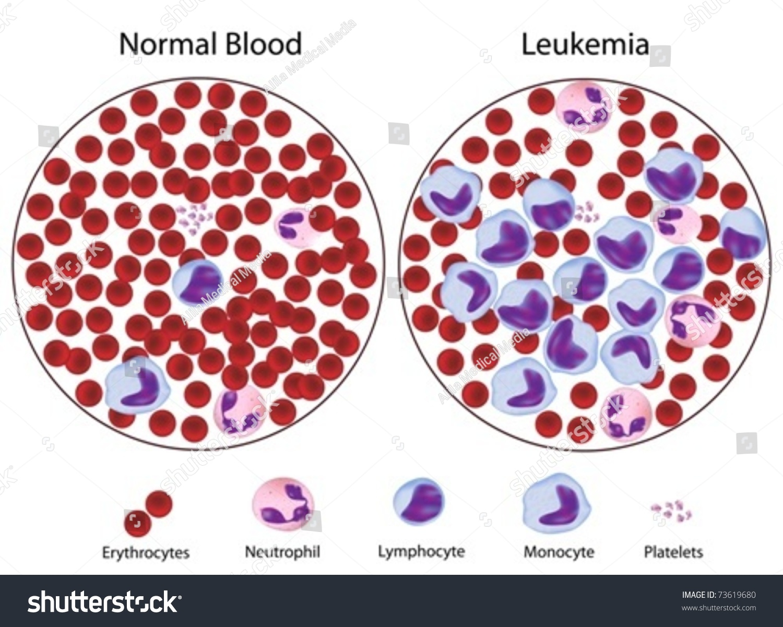 Leukemic Versus Normal Blood Great Details Stock Vector