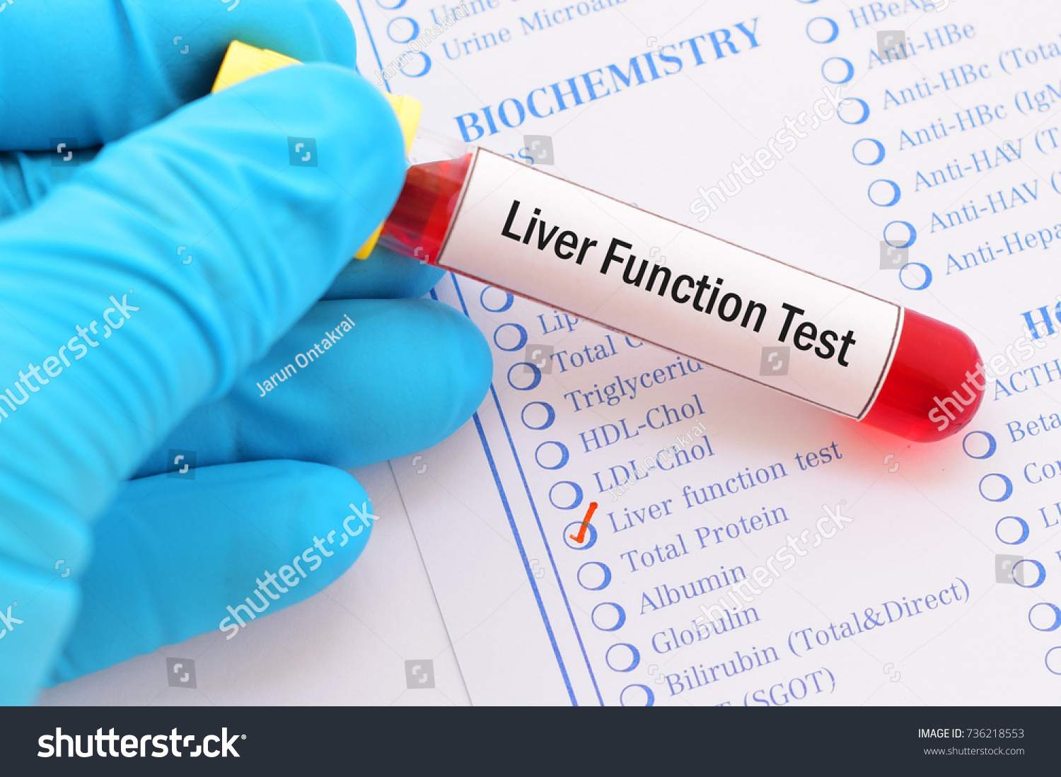 Blood Sample Requisition Form Liver Function Stock Photo Edit Now