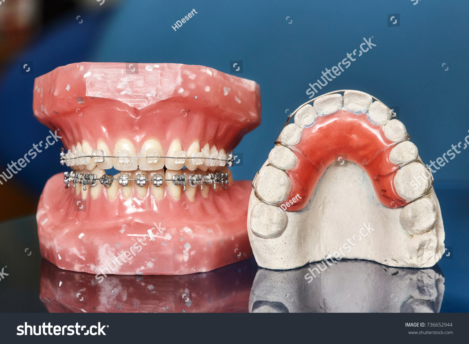 Human Jaw Teeth Model Metal Wired Stock Photo (Edit Now) 736652944 ...