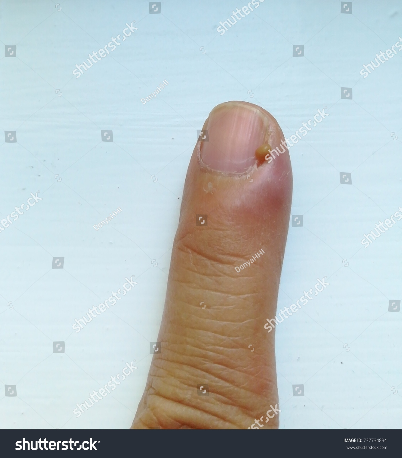 Picture Left Index Finger Pus Next Stock Photo (Royalty Free ...