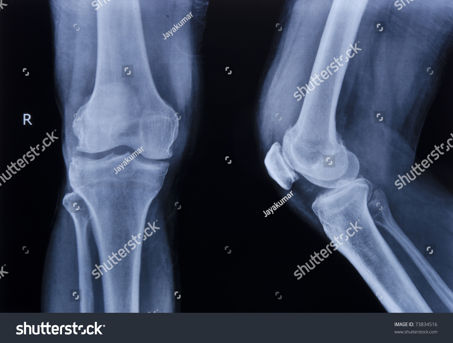 Collection Xray Normal Knee Stock Photo 73834516 - Shutterstock