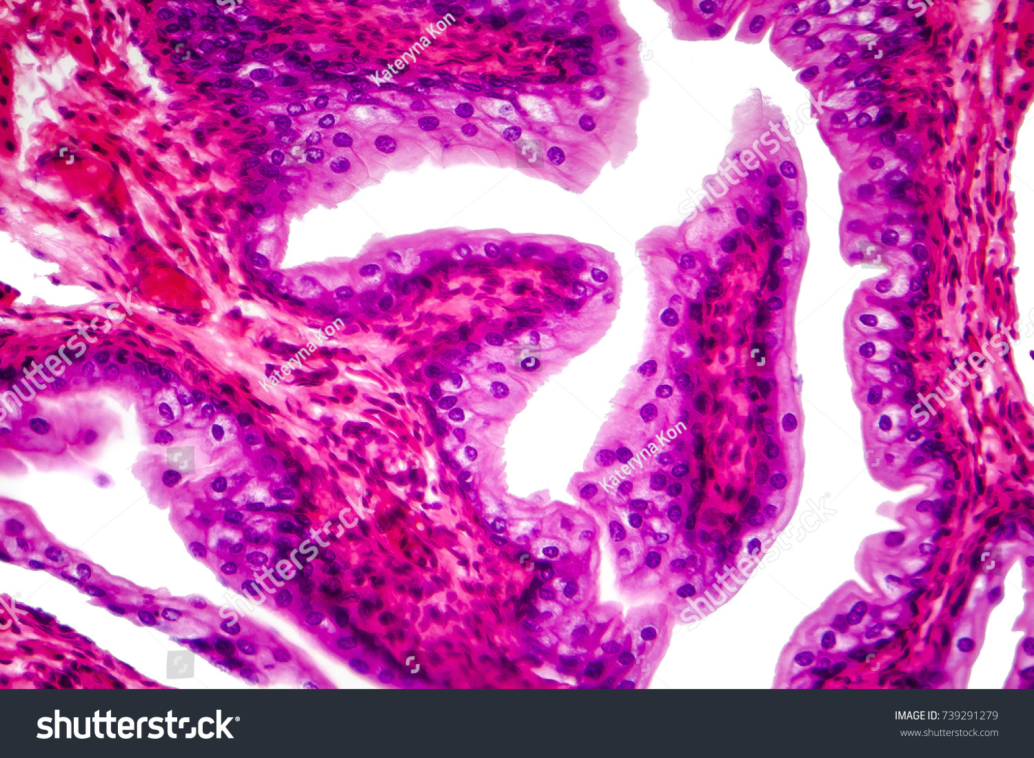 transitional epithelium tissue urinary bladder under stock photo