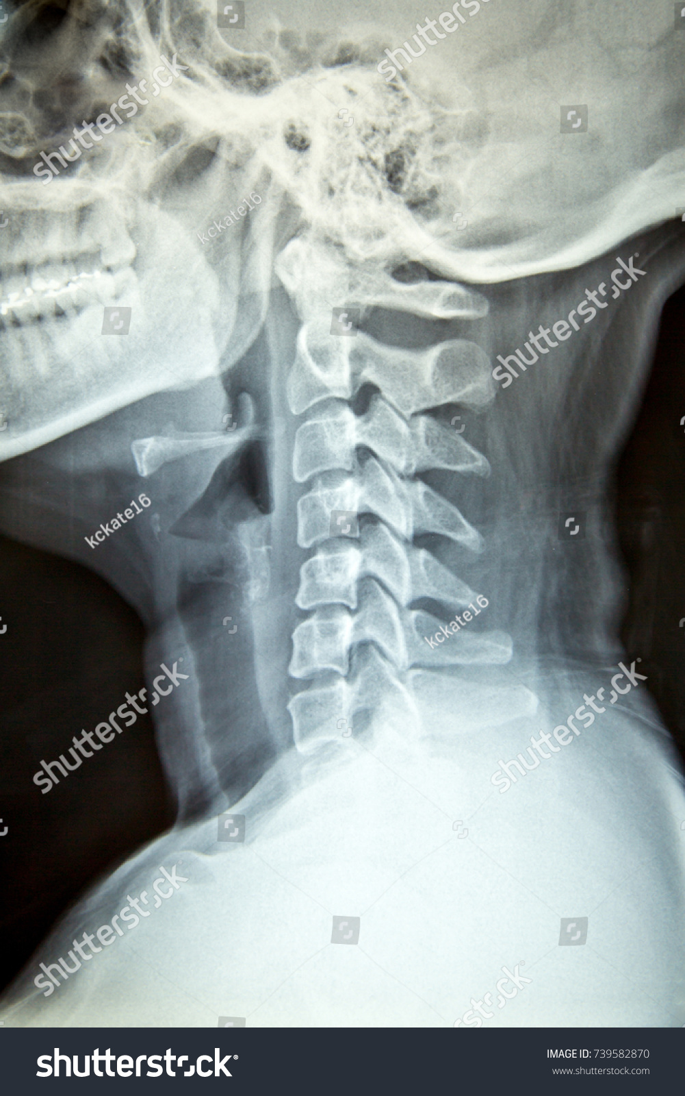 Close Xray Film Show Cervical Spine Stock Photo 100 Legal