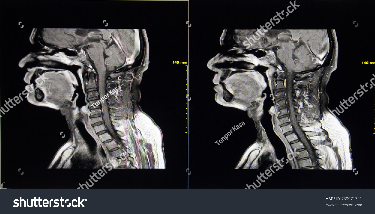 Cervical Spine Mri Image Show 2 Stock Photo Edit Now 739971721