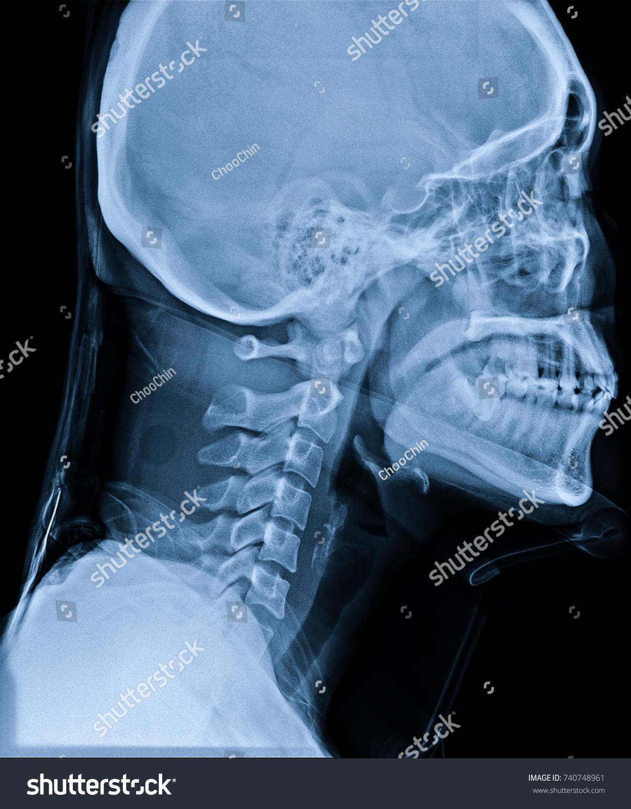 Xray Neck Cervical Spine Side View Stockfoto Jetzt Bearbeiten