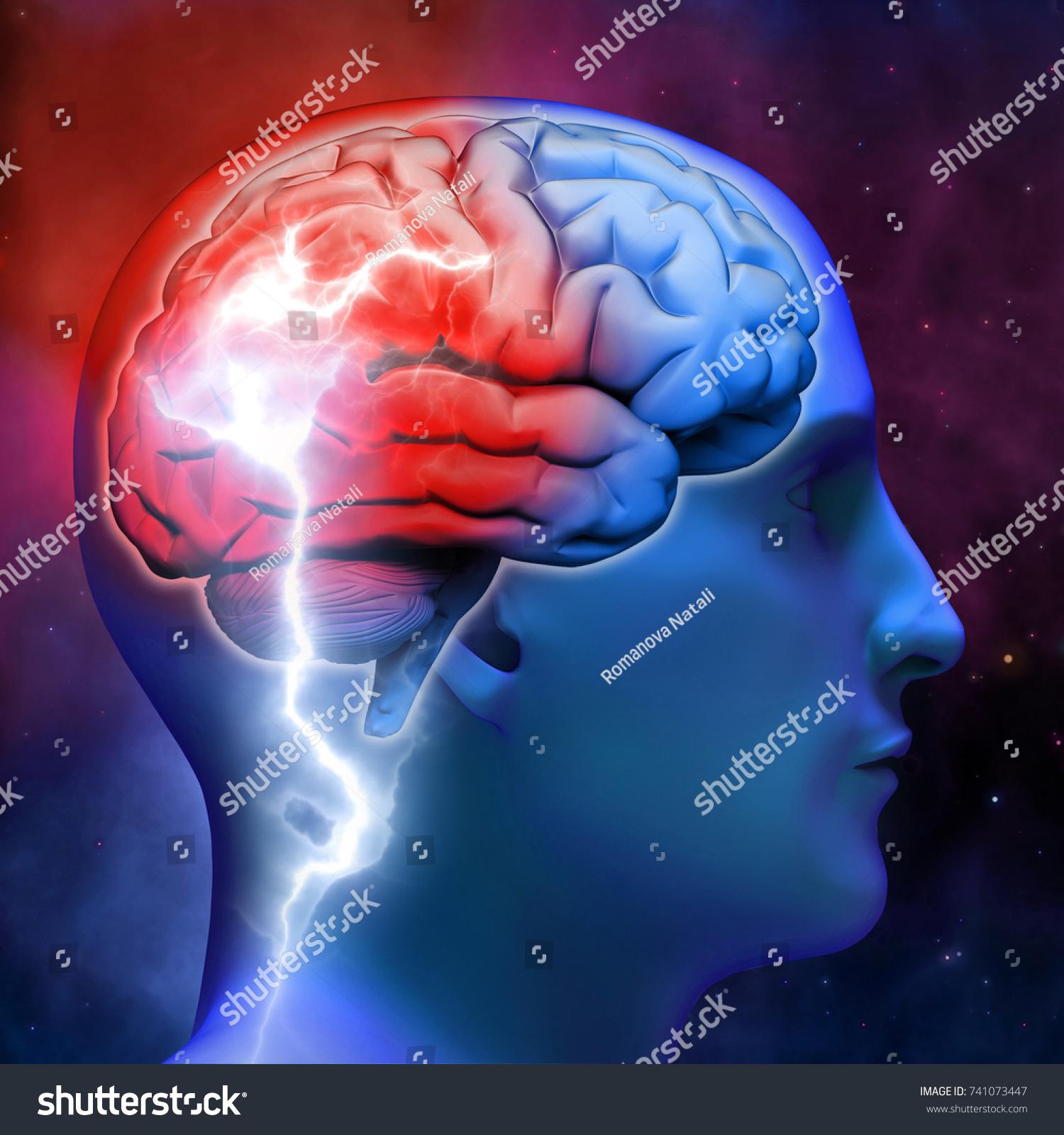 Bright Flash Human Brain Neurology Disease Stock Illustration