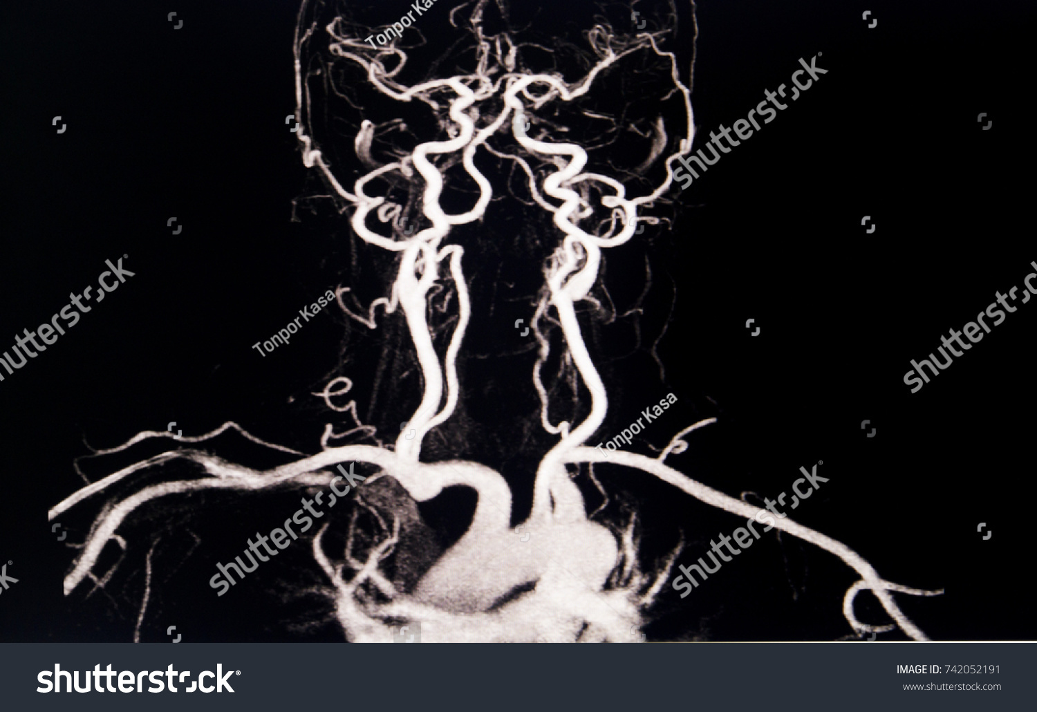 MRA Blood Vessels Brain Cerebrovascular Disease Stock Photo (Edit ...