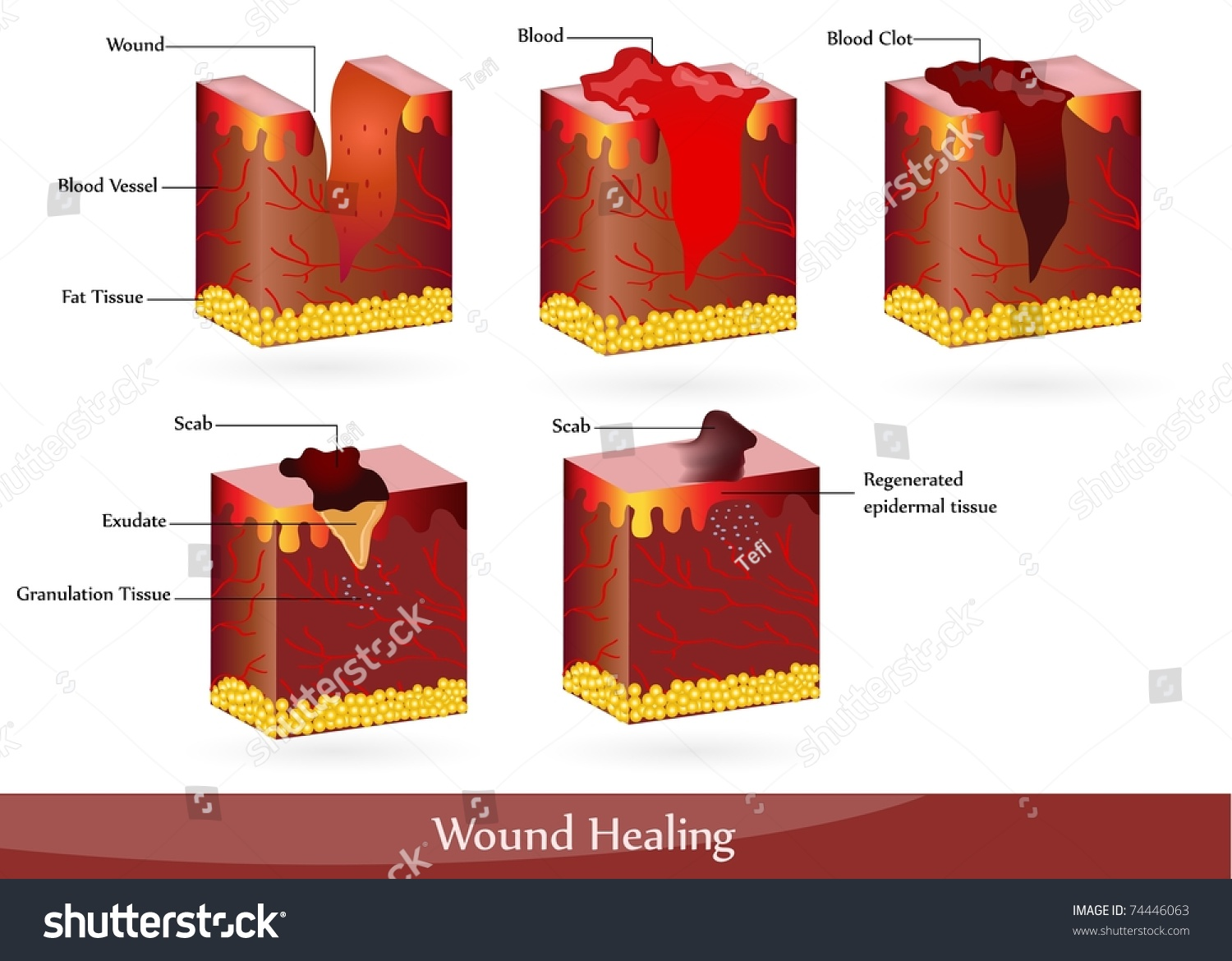 Wound Healing Illustration Showing Skin After Stock Vector