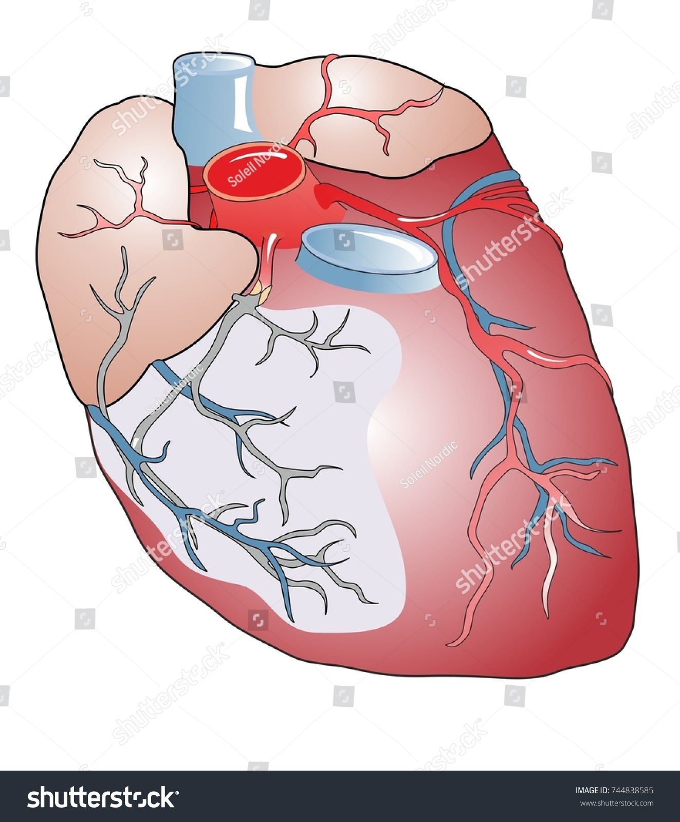 Myocardial Infarction Heart Attack Occurs When Stock Illustration