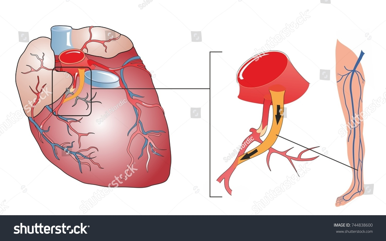 Coronary Artery Bypass Surgery Procedure Replace Stock Illustration ...