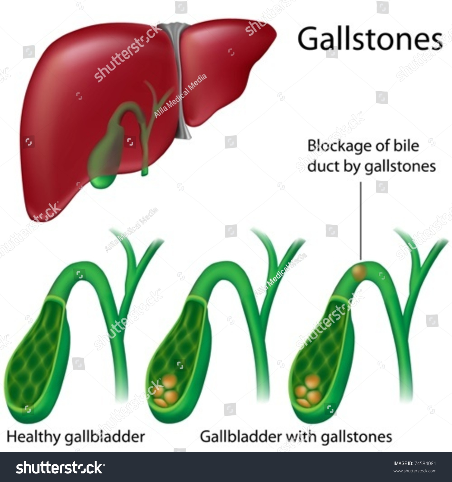 Cross Section Gallbladder Without Gallstones Stock Vector Royalty