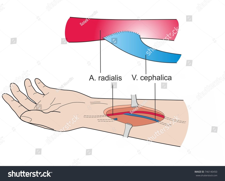 Illustration Arteriovenous Fistula Connection Between Artery Stock ...