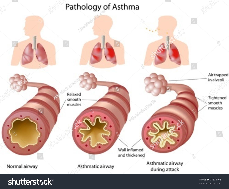 Anatomy Asthma Stock Vector 74674165 Shutterstock