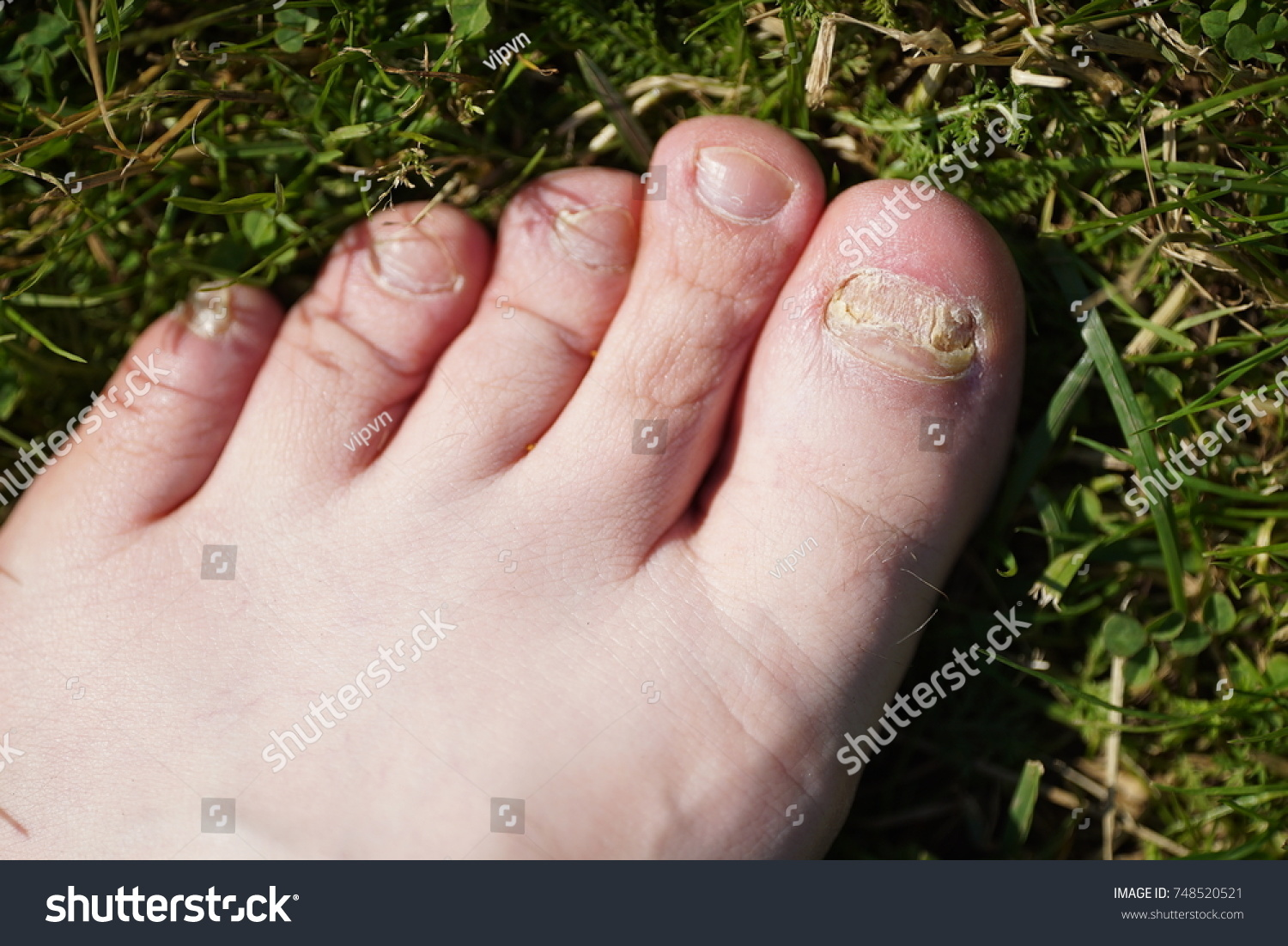 Onychomycosis Fungal Infection Nails Young Mans Stock Photo (Royalty ...