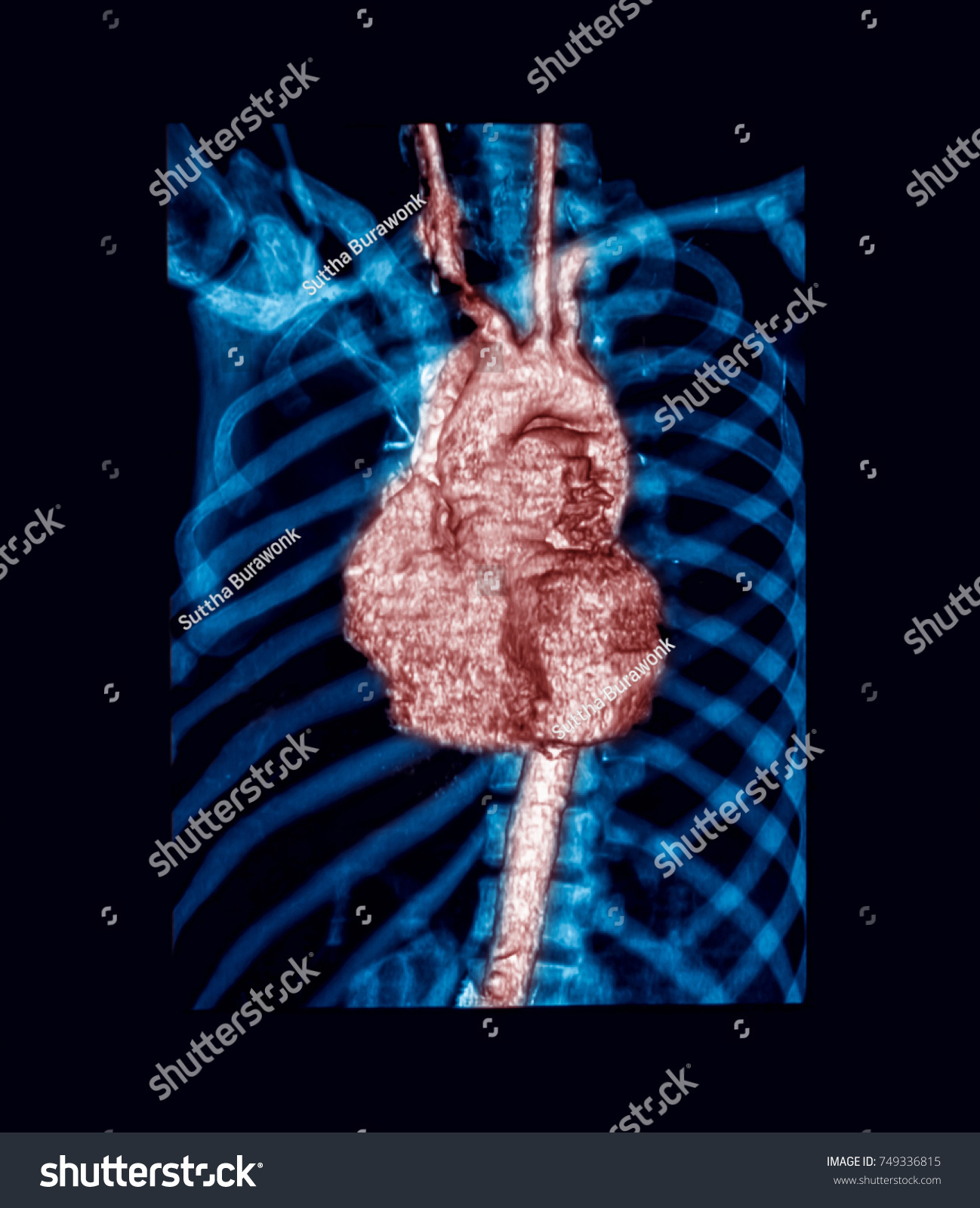 Computed Tomography Angiography CTA Chest Heart Stock Photo (Edit ...