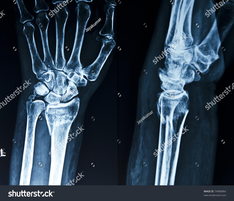 broken xray human hand wrist stock photo 74980864