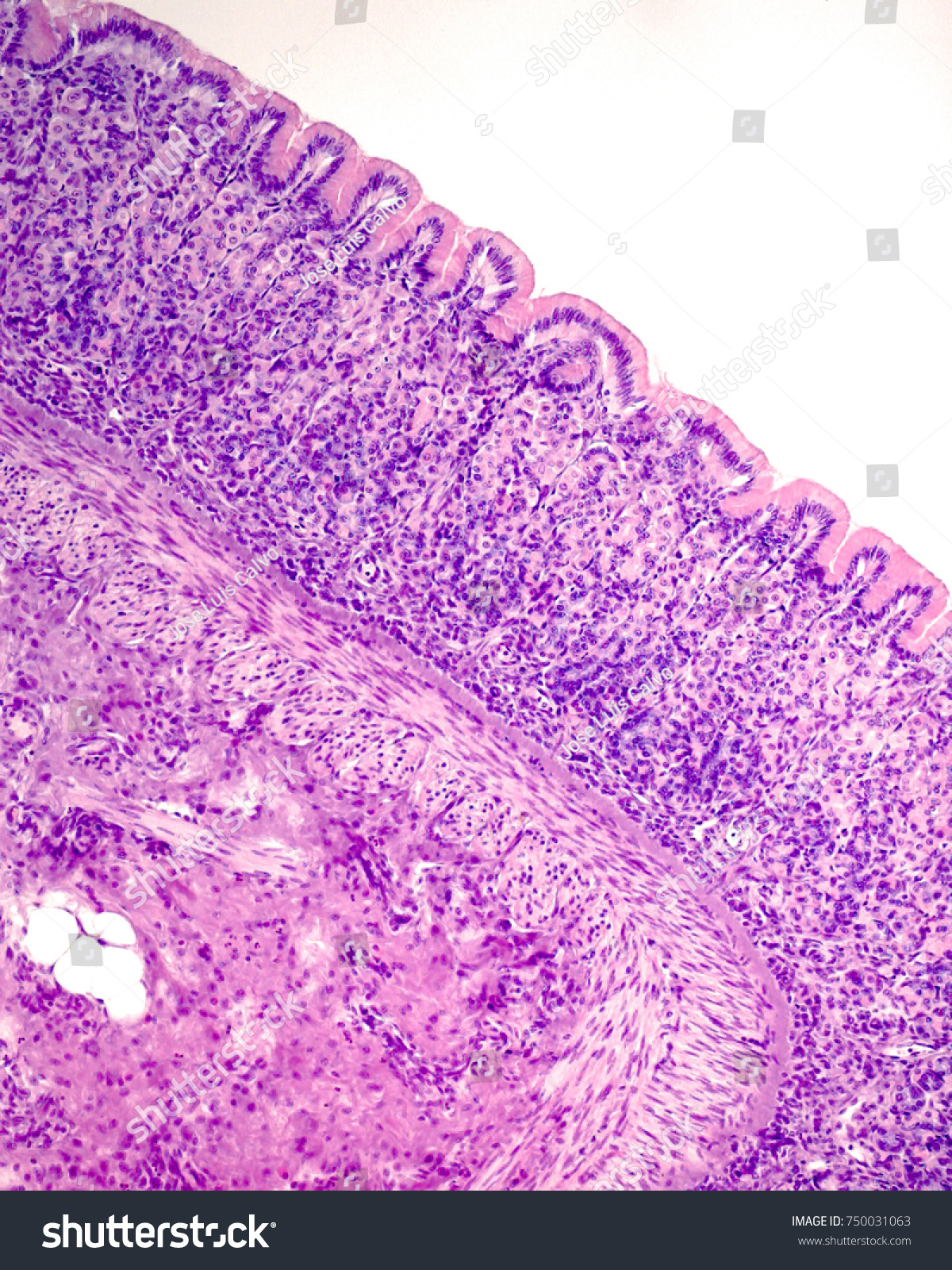 Mucosa Layer Shows Surface Mucous Epithelium Stock Photo Royalty