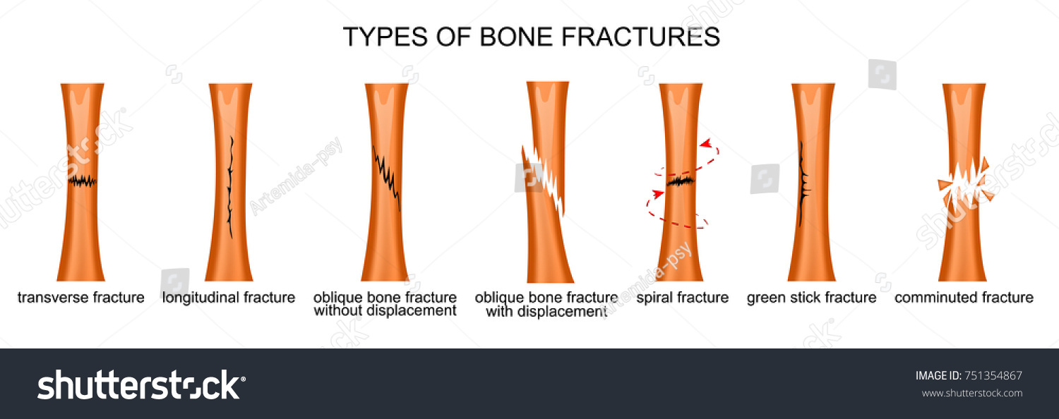 Vector Illustration Types Bone Fractures Stock Vektorgrafik