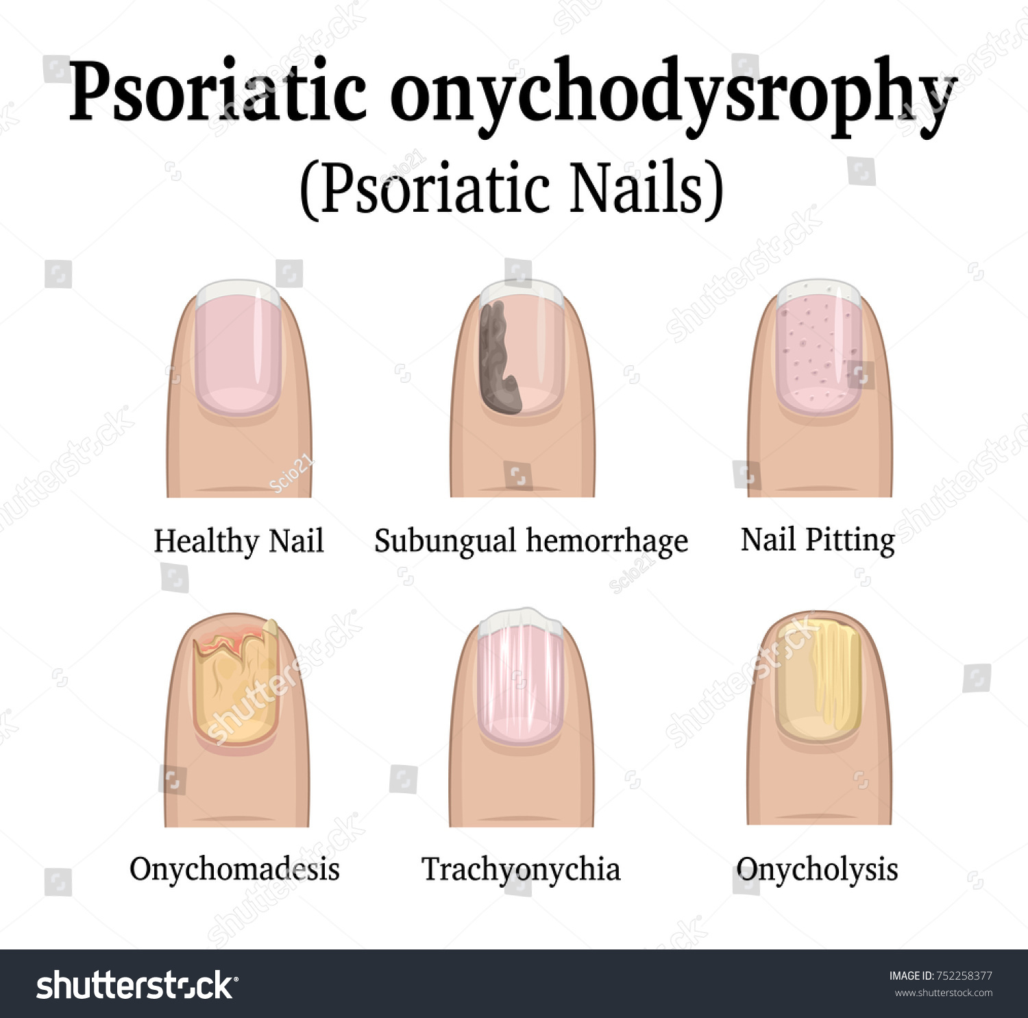 Illustration Five Types Nail Psoriasis Such Stock Vector 752258377 ...