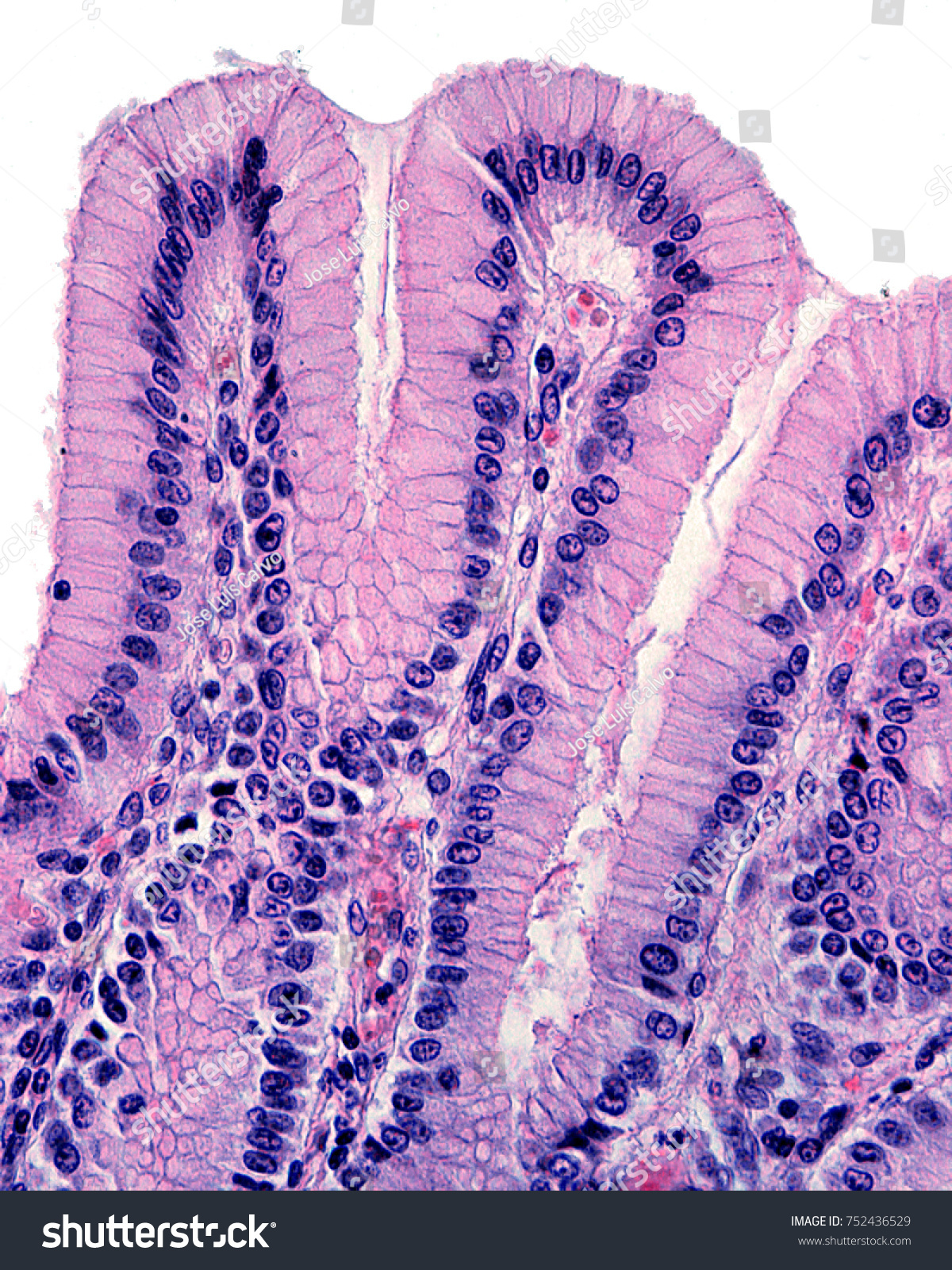 Surface Epithelium Stomach Invaginates Form Gastric Stock Photo