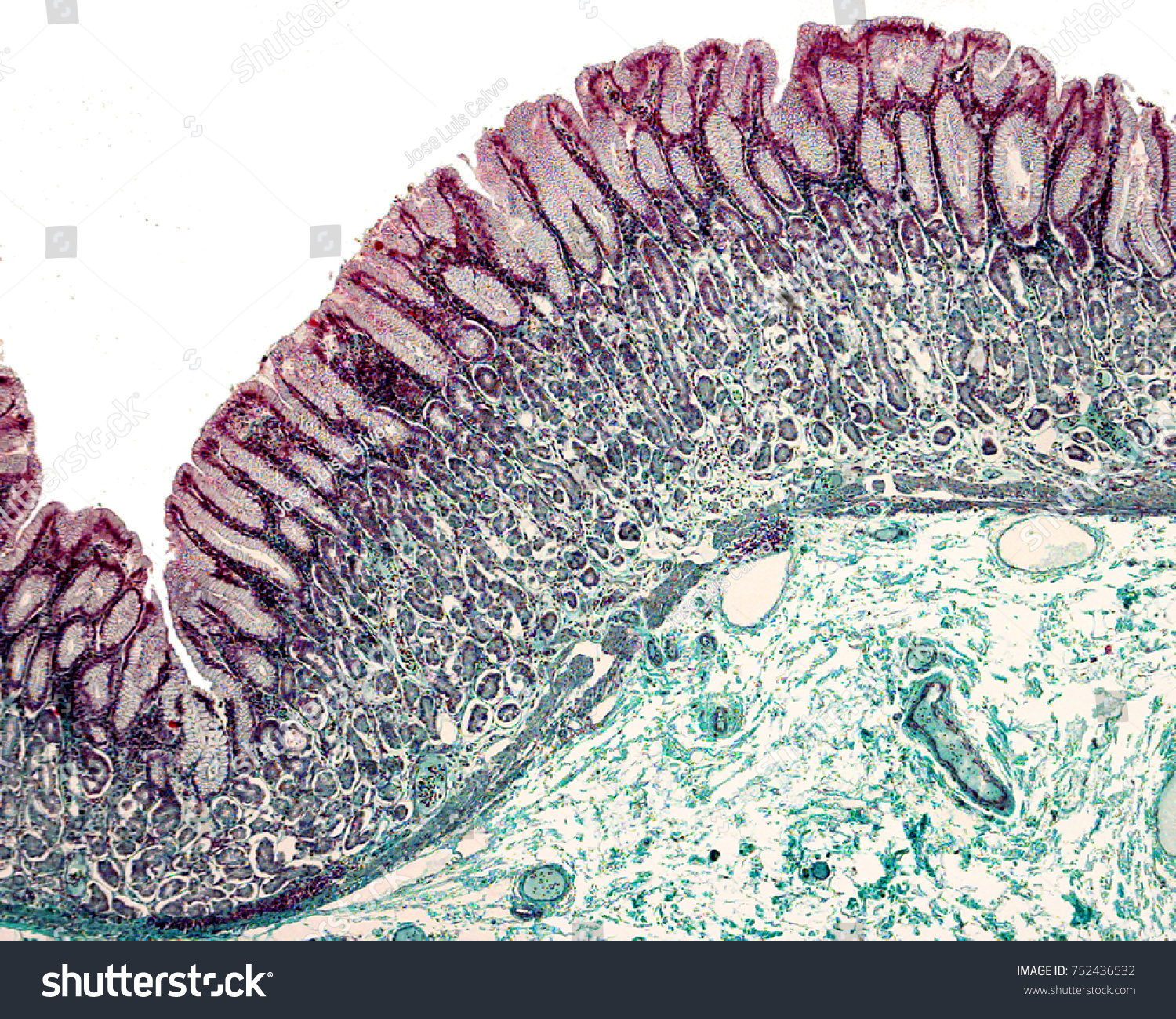 Gastric Mucosa Stained Masson Trichrome Stain Stock Photo Edit Now