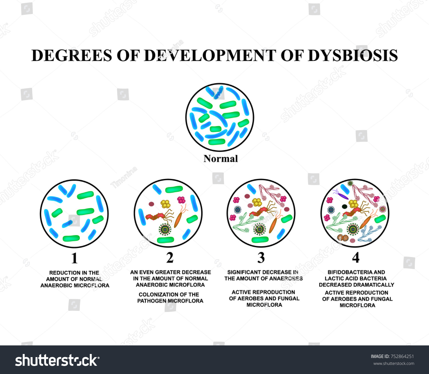 4 degrees development dysbiosis dysbacteriosis intestine stock 4 degrees of development of dysbiosis dysbacteriosis of the intestine the large intestine pooptronica Image collections