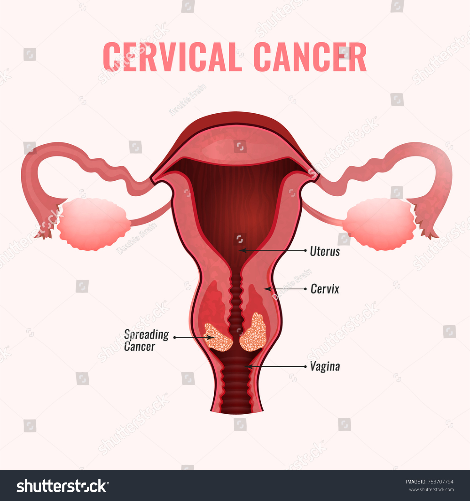 Cervical Cancer Development Image Detailed Vector Stock Vector ...