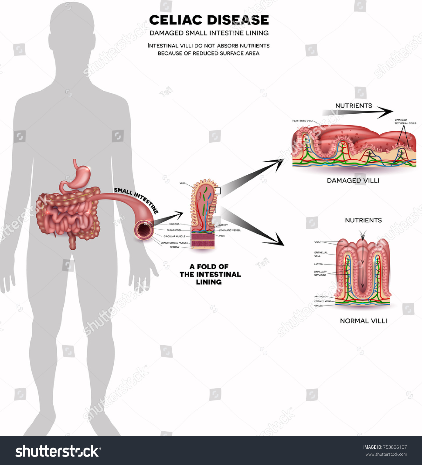 Celiac disease affected small intestine villi stock vector celiac disease affected small intestine villi damaged cells by bodys reaction to gluten intestinal pooptronica