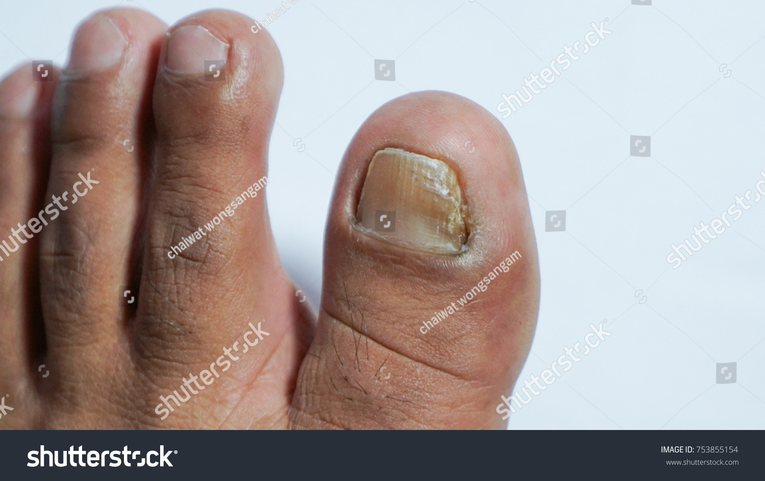 Ingrown Toenail Fingers On Foot Pedicure Stock Photo (Royalty Free ...