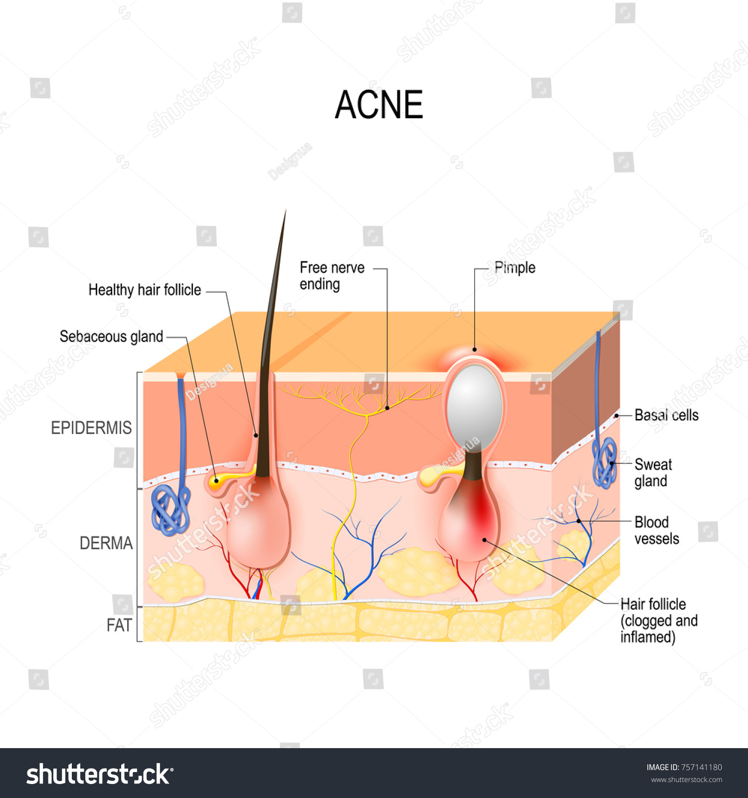 Acne Vulgaris Pimple Healthy Hair Follicle Stock Vector 757141180 ...