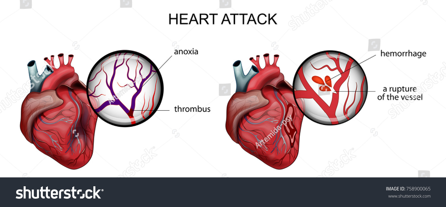 Vector Illustration Myocardial Infarction Thrombosis Hemorrhage