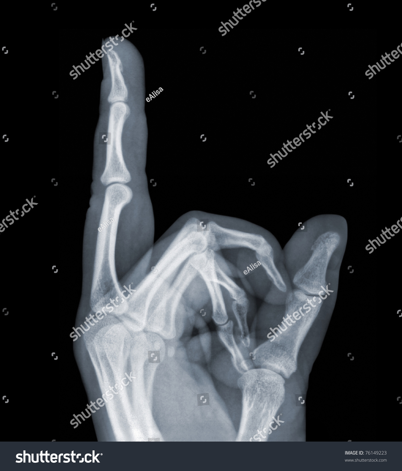 Xray Hand Showing Middle Finger Sign Stockfoto (Lizenzfrei) 76149223 ...