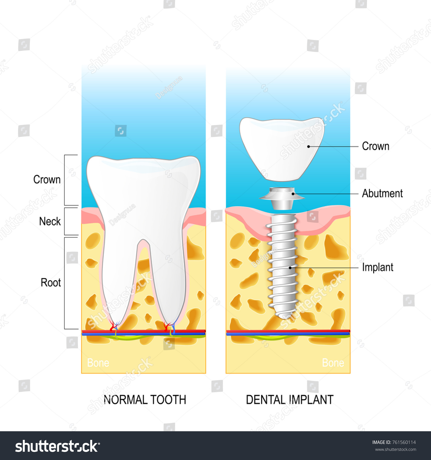 Dental Implant Normal Human Tooth Prosthesis Stock Photo (Photo ...
