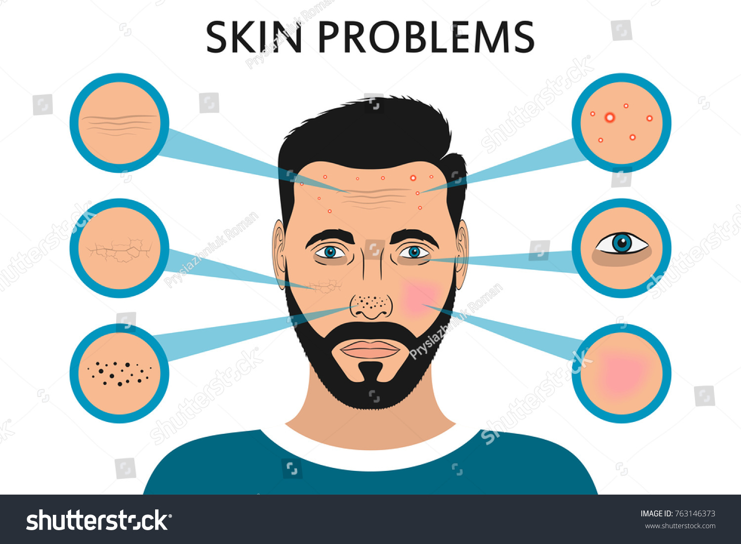 Male face skin problems acne pimples stock vector 763146373 male face skin problems acne and pimples black spots redness dryness pooptronica