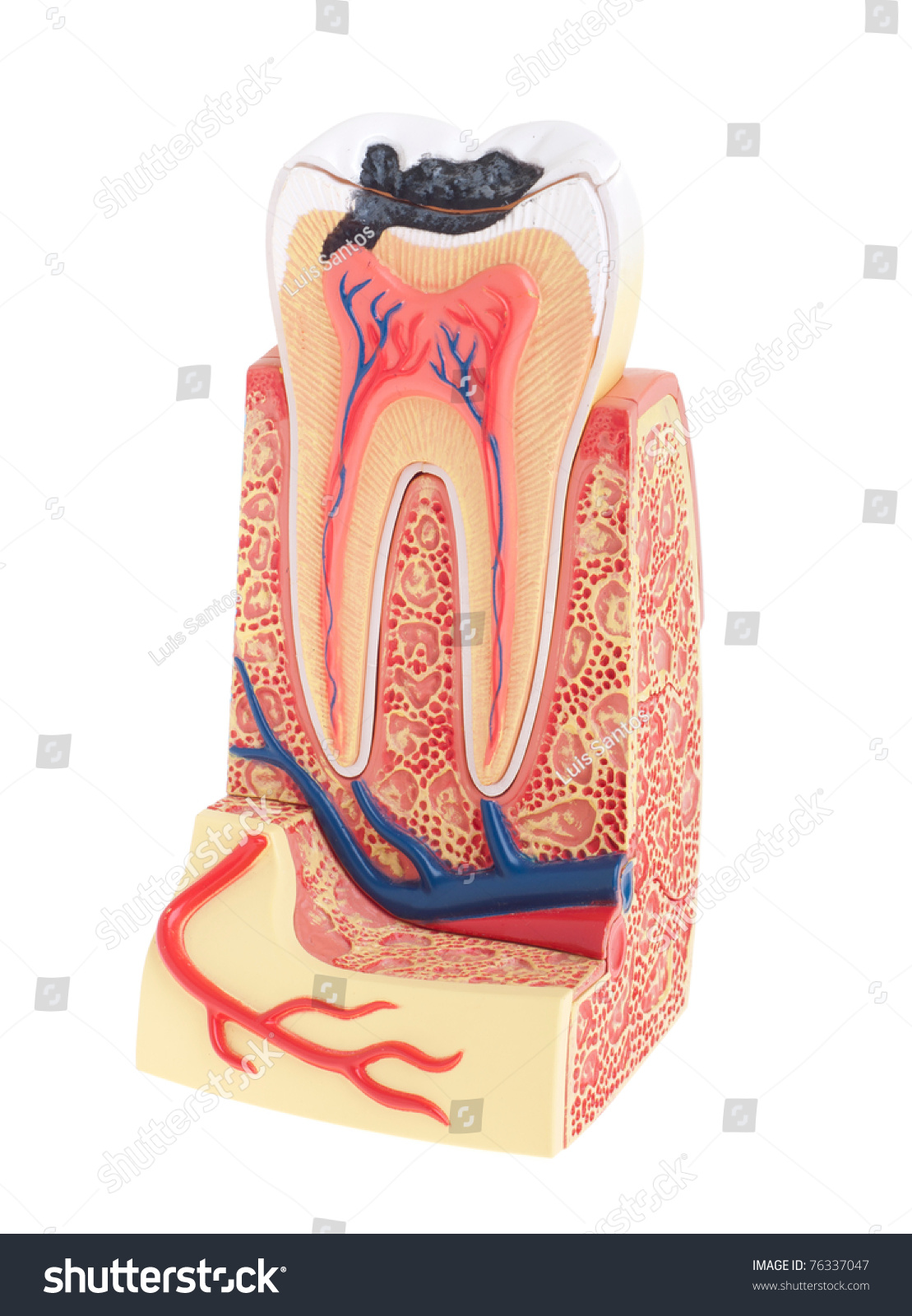 Tooth Anatomy Vital Tooth Structure Bone Stock Photo (Royalty Free ...