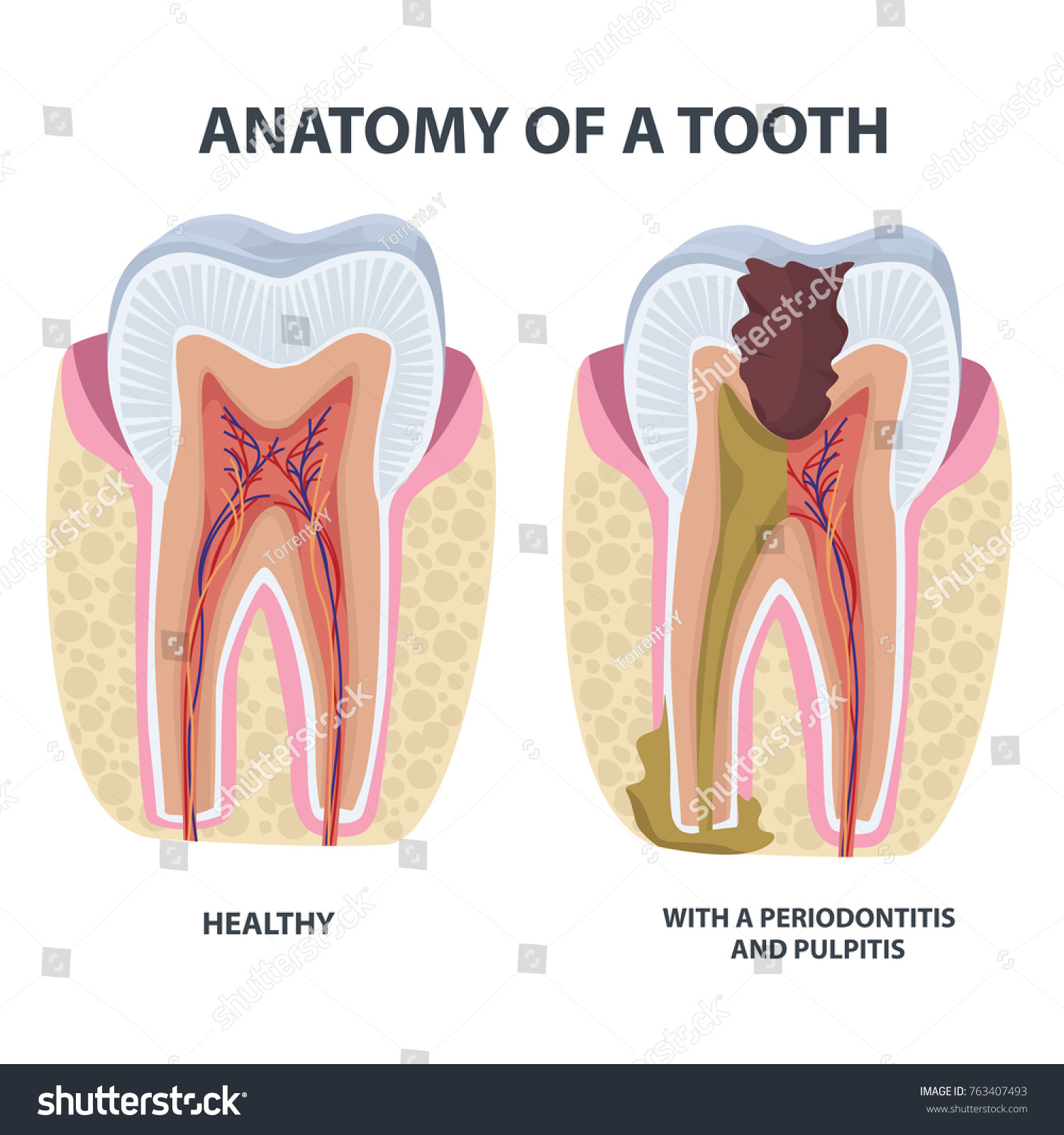 Tooth Anatomy Vector Dental Infographics Enamel Stock Vector