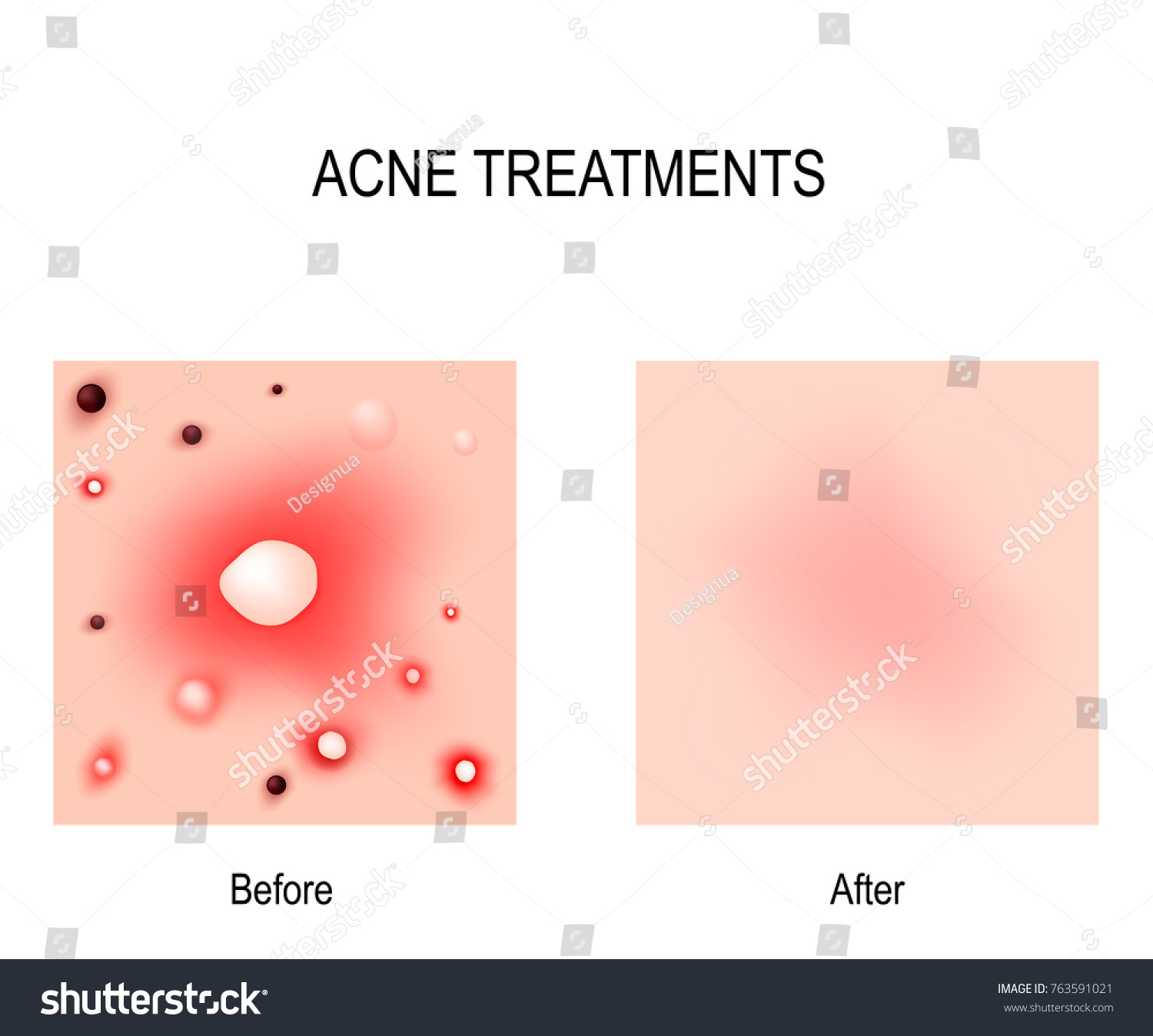 Acne Treatment Before After Skin Problems Stock Vector Royalty