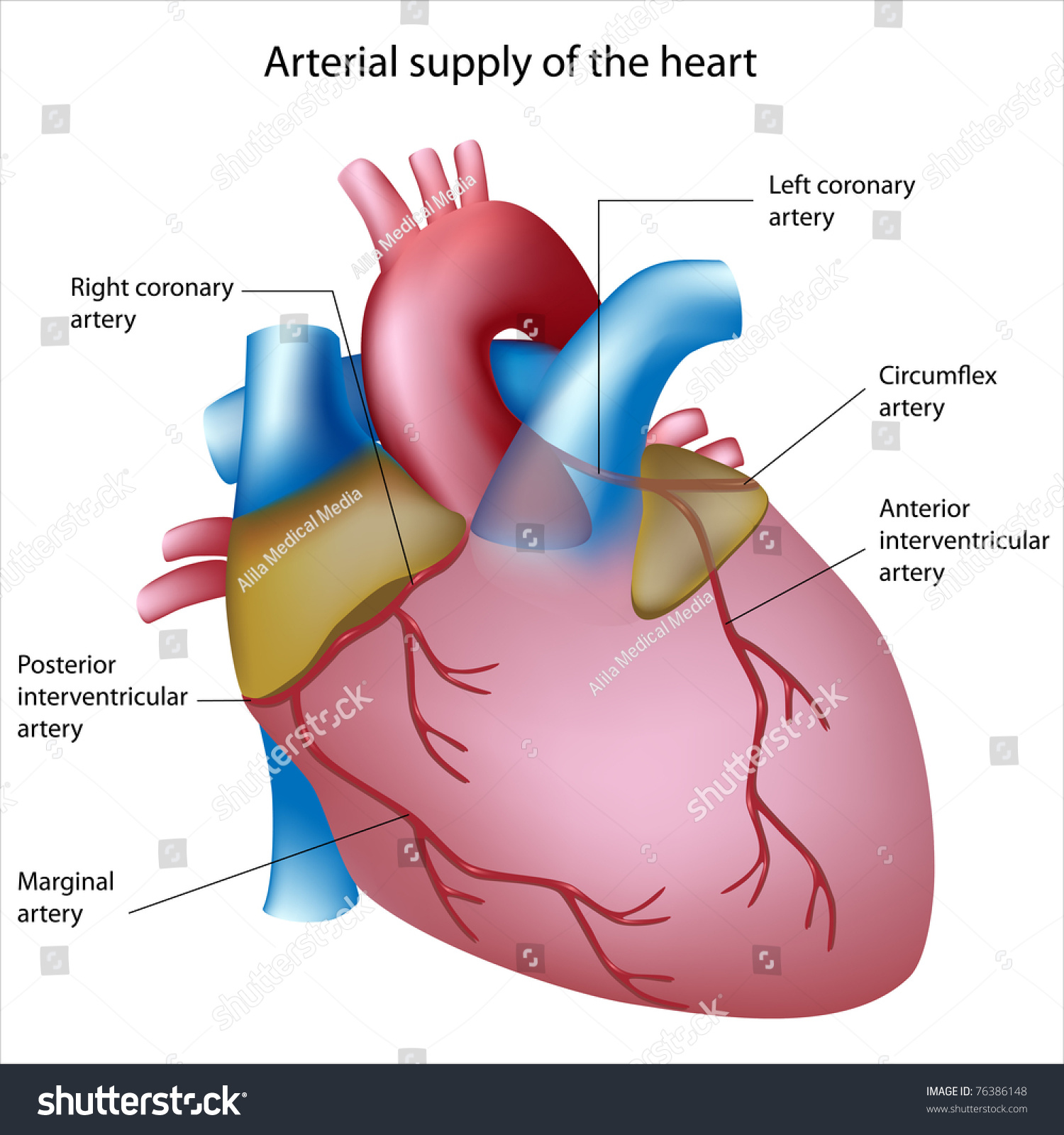 Blood Supply Heart Sites Heart Attack Stock Illustration 76386148 ...