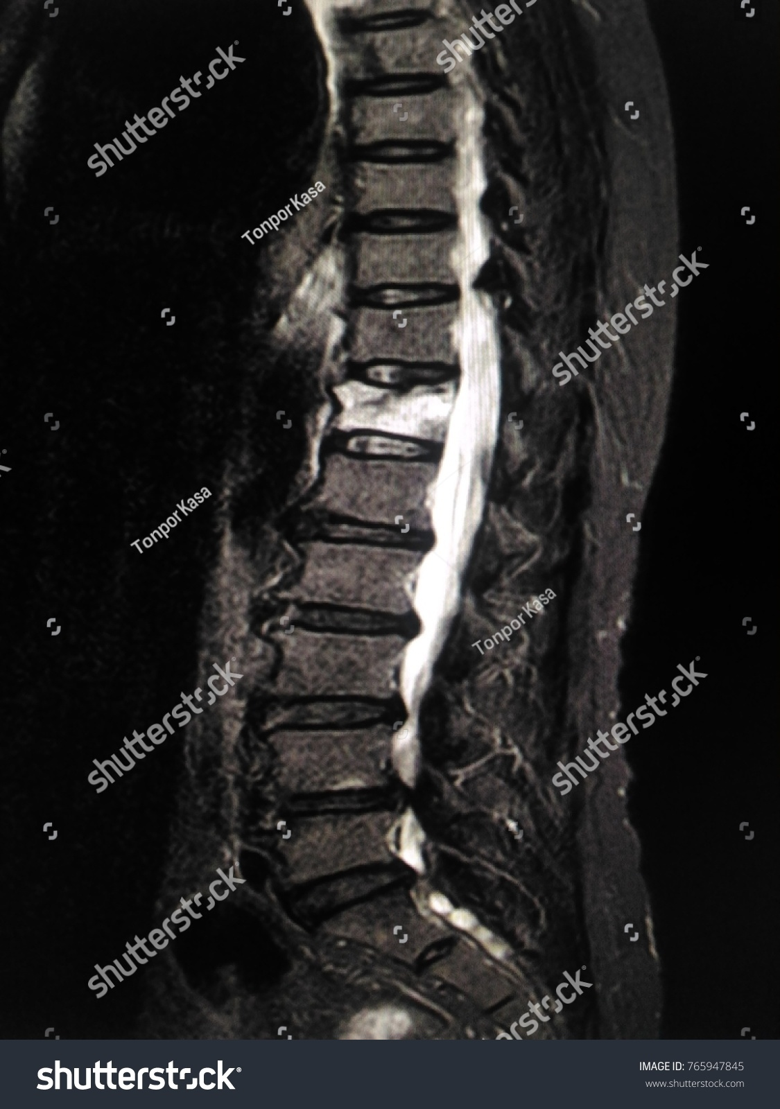 Mri Thoracic Lumbar Spine Moderate Anterior Compression Stock Photo