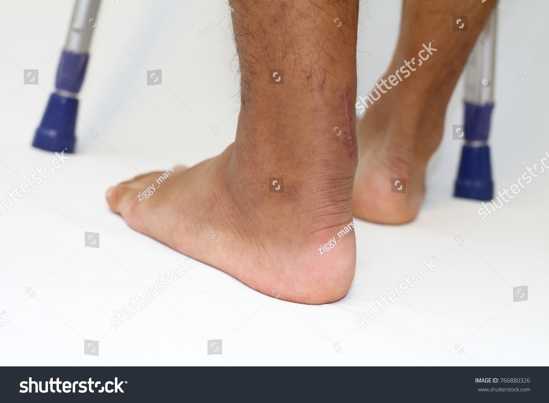 Operation Scar Achilles Tendon Rupture Crutchs Stockfoto Jetzt