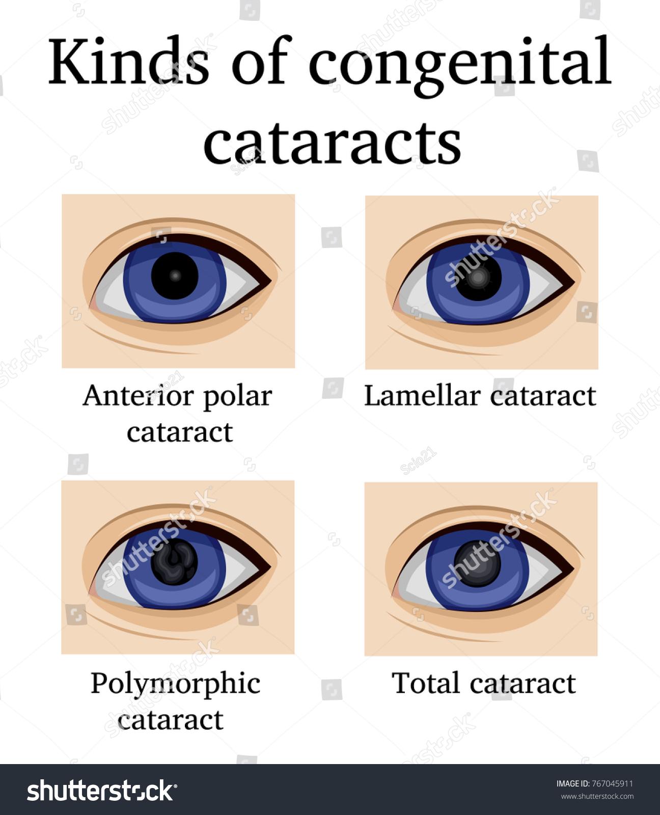 Lamellar Cataract