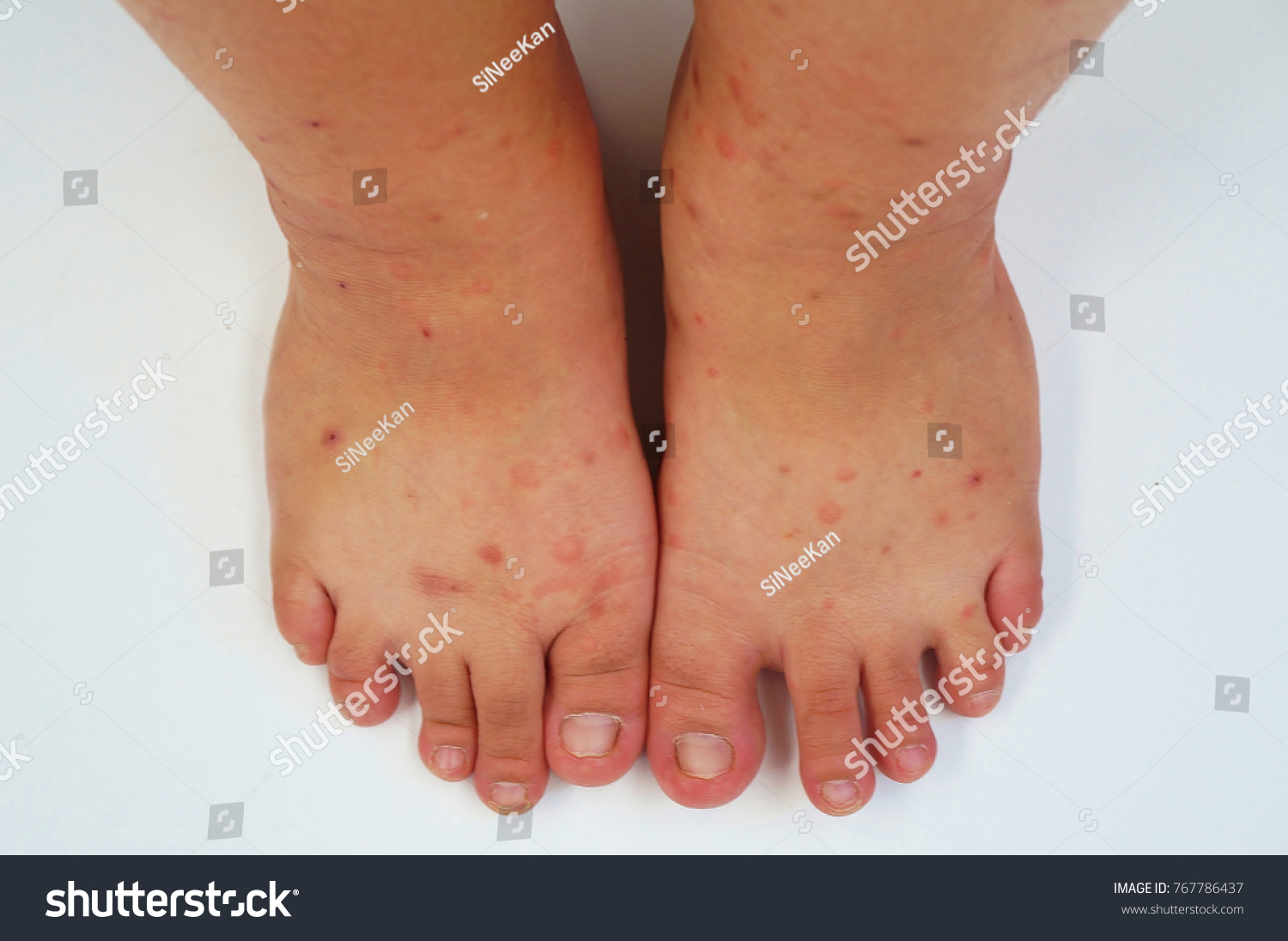 Legs Many Mosquito Bites Sore Scar Stock Photo (Royalty Free ...