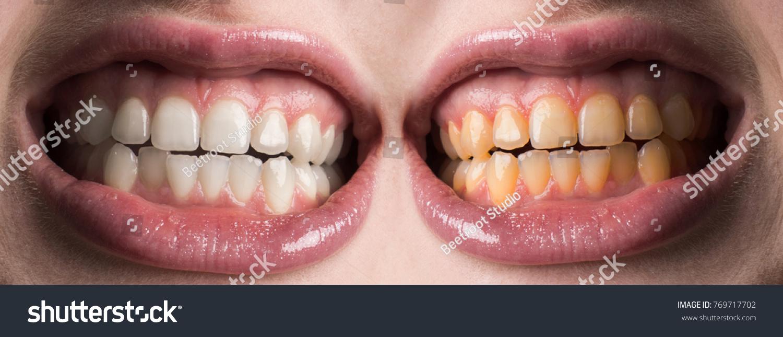 Teeth Whitening Dentist Stomatology Dental Clinic Healthcare