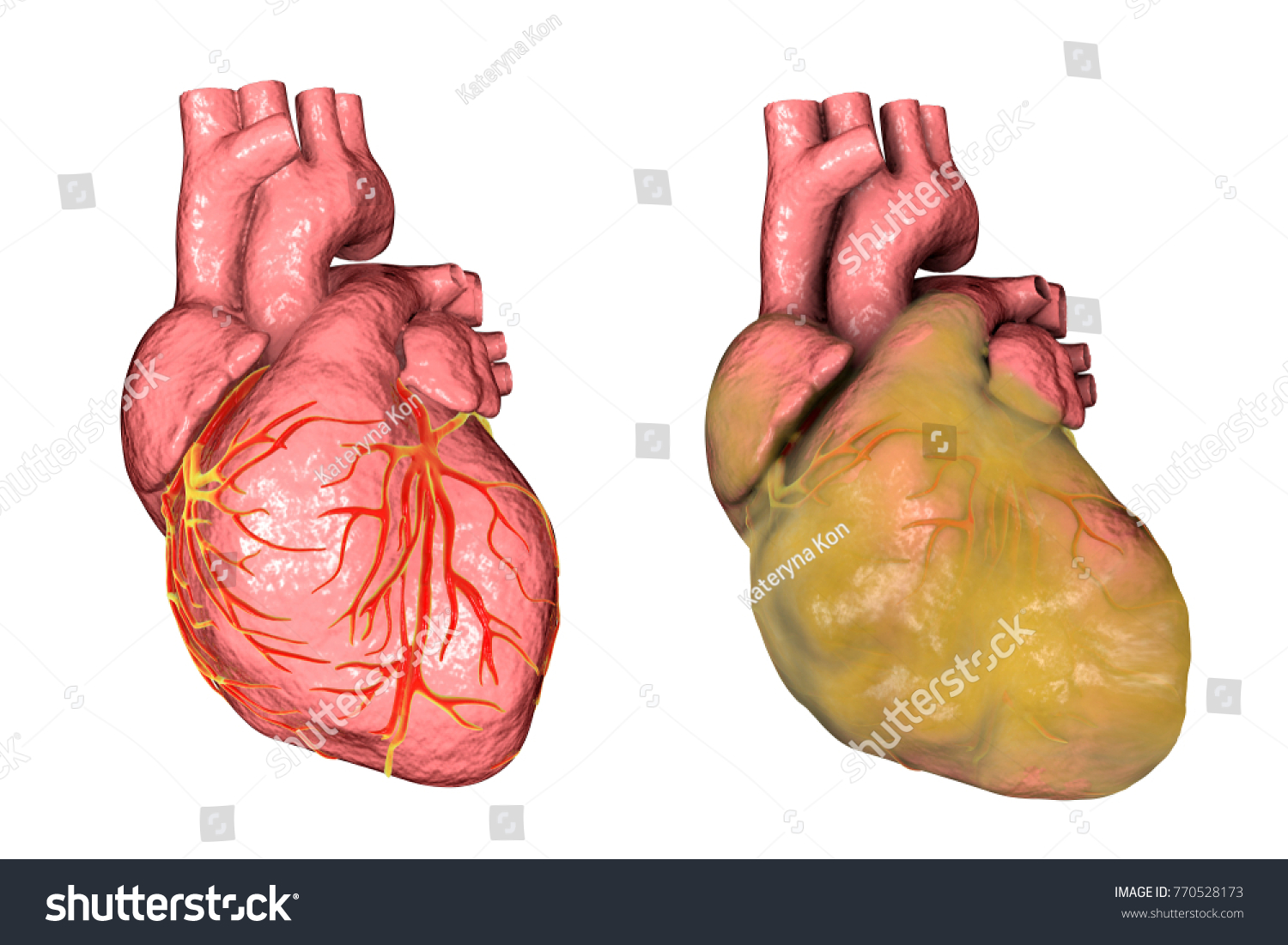 Healthy Obese Heart Left Ventricular Hypertrophy Stock Illustration ...