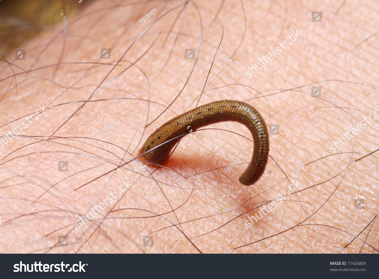 К чему снятся черви в волосах