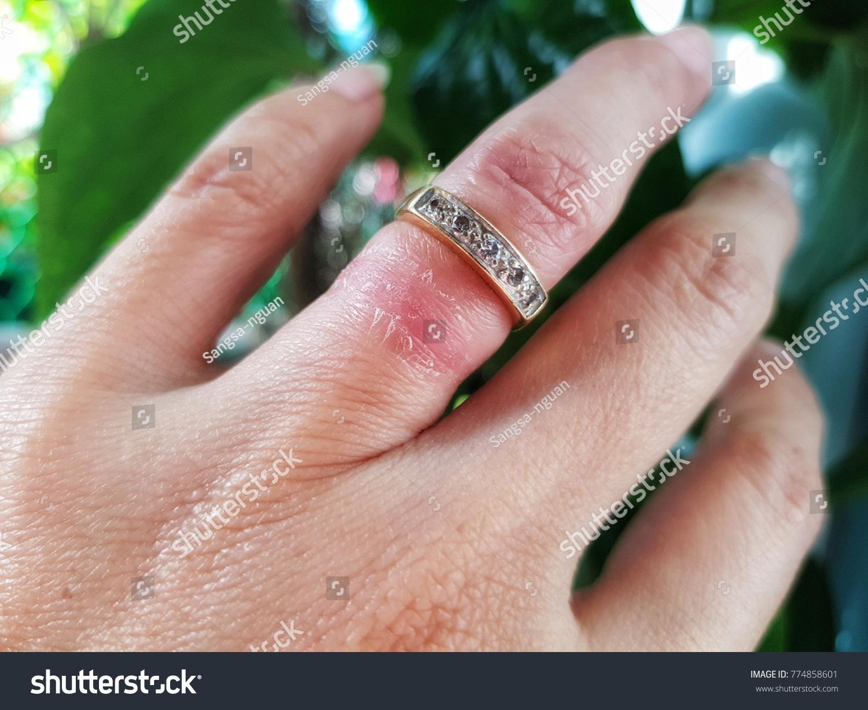 Wedding Ringleft Ear Wound Gold Juli Stock Photo (100% Legal ...