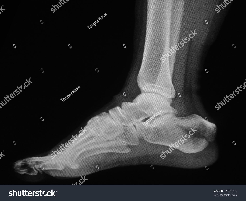 human foot ankle closeup xray | EZ Canvas
